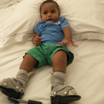 Baby Tiberius given a chance to walk through Mater Children's Private Brisbane Clubfoot Clinic